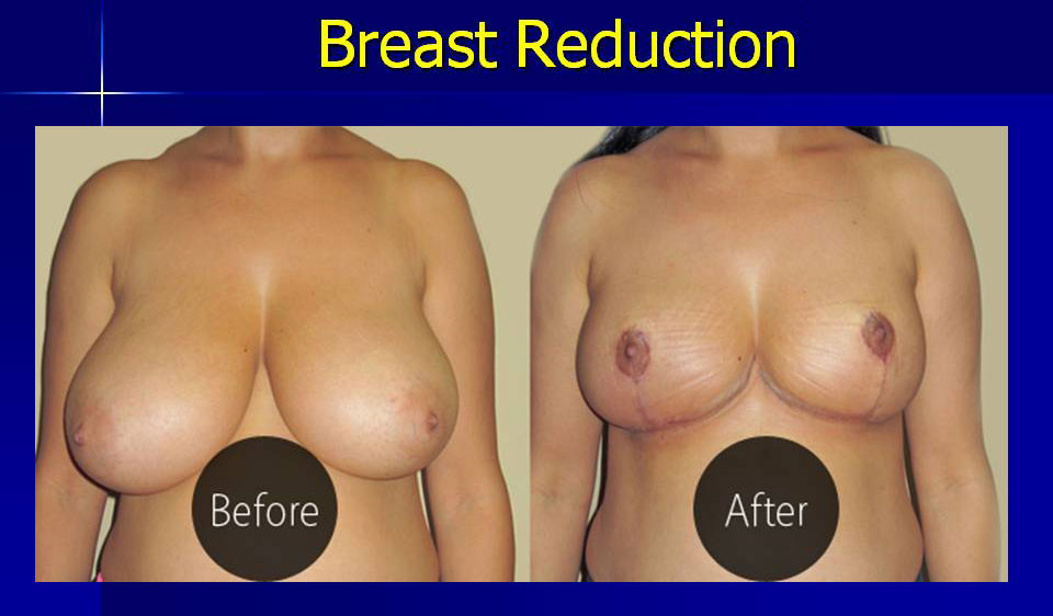 breast-reduction-3