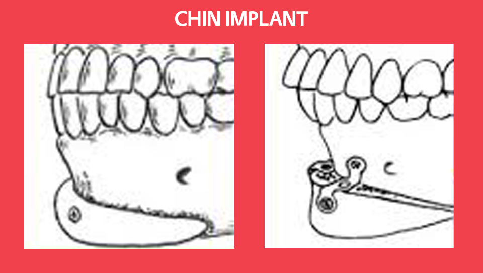 chin-implants1