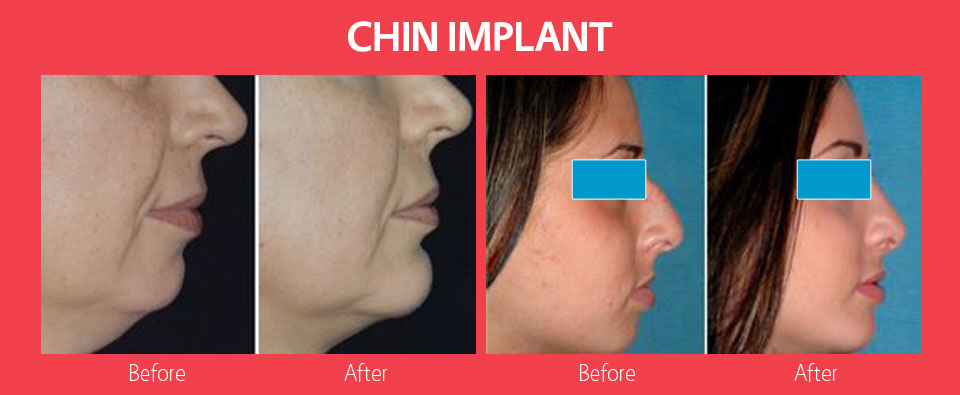 chin-implants2
