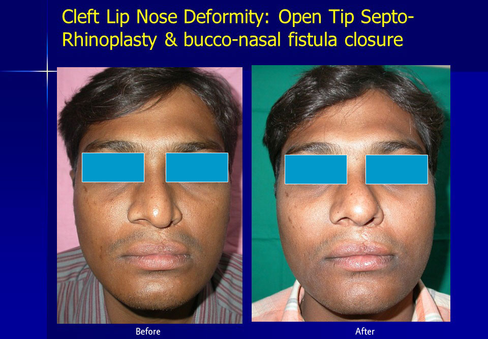 cleft-lip-nose-open-tip