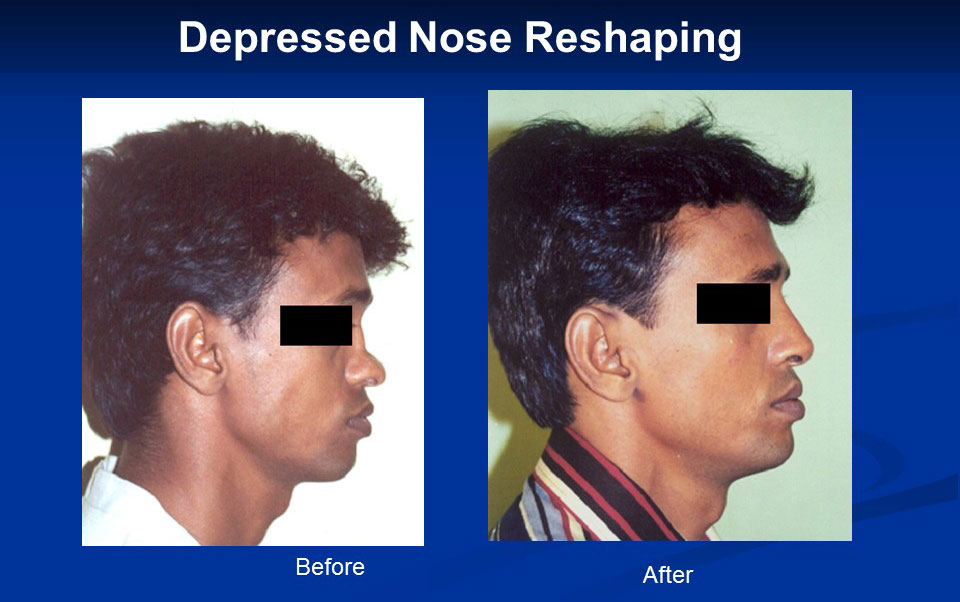 depressed-nose-reashaping
