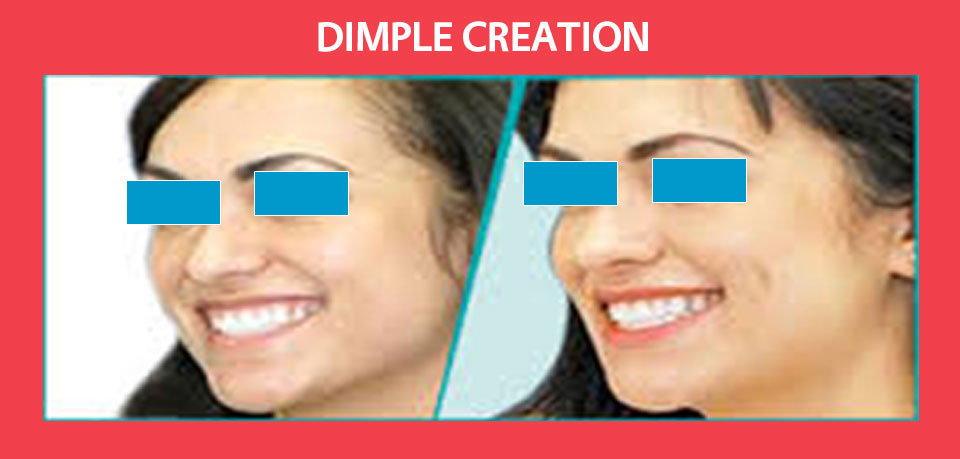 dimple-creation1
