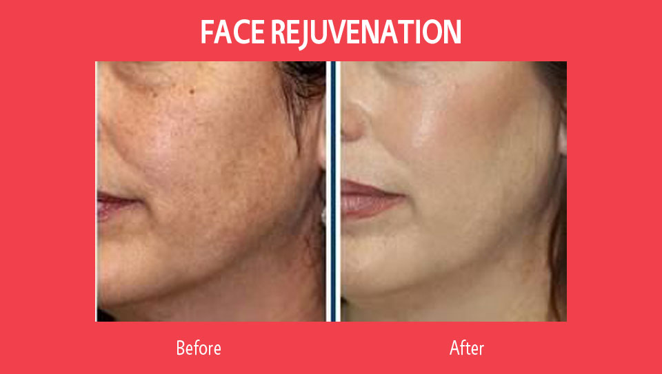 face-rejuvenation