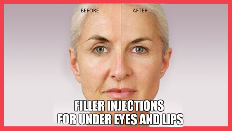 filler-injection