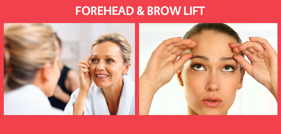 forhead-brow-lift