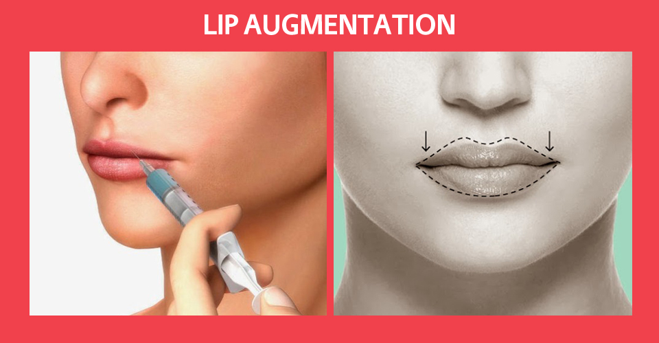 lip-augmentation