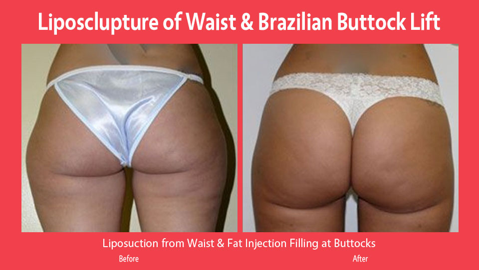 liposclupter-brazilian-buttock-lift