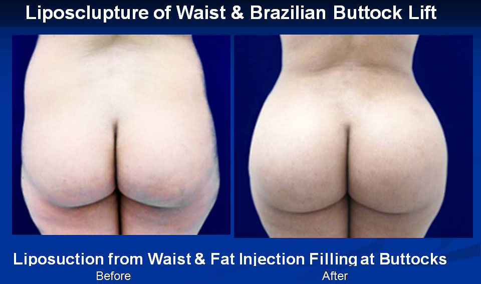 liposclupture-of-waist--brazilian-buttock-lift