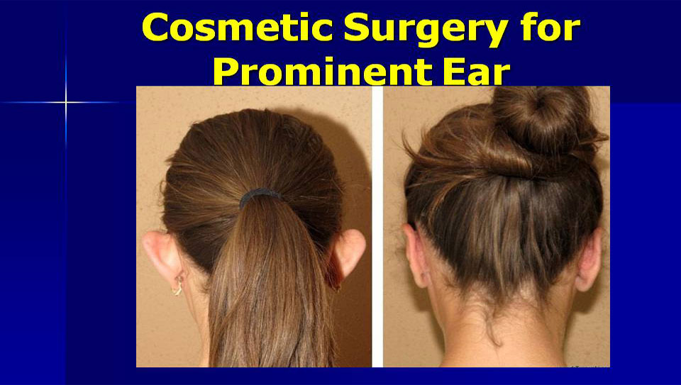 Ear Cosmetic Surgery Earlobe Repair Auroplasty Clinic In