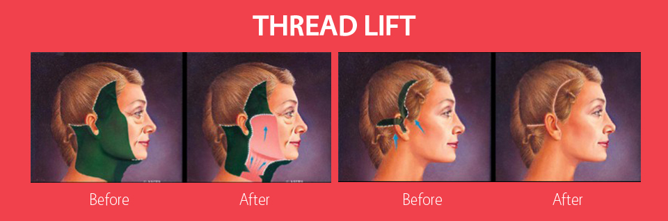 thread-lift