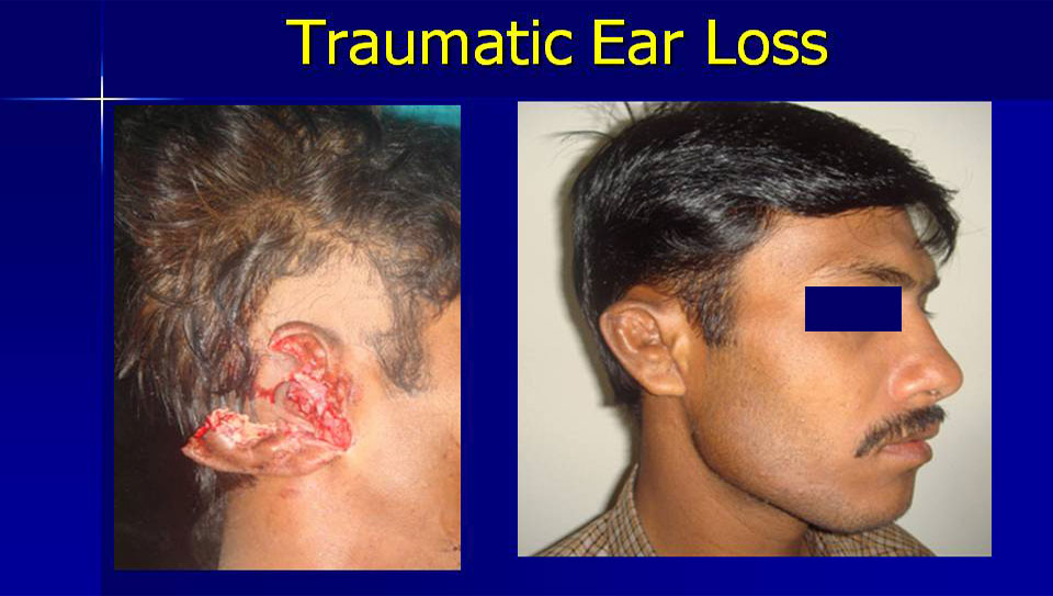 traumatic-ear-loss